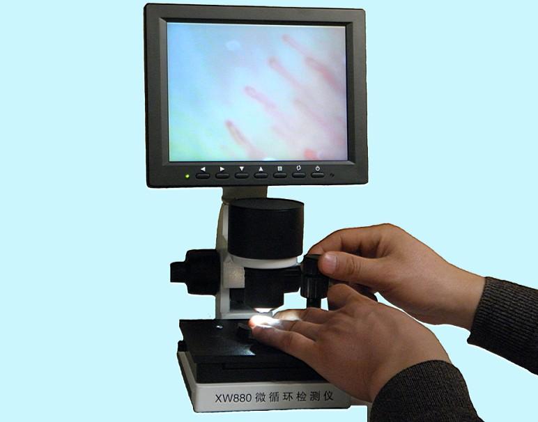 供应显微观察仪微循环检测仪图片