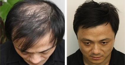 男士发型流向向后
